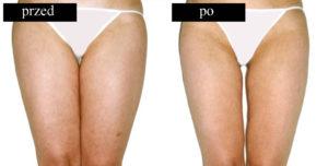 Efekty drenazy limfatycznego na nogach